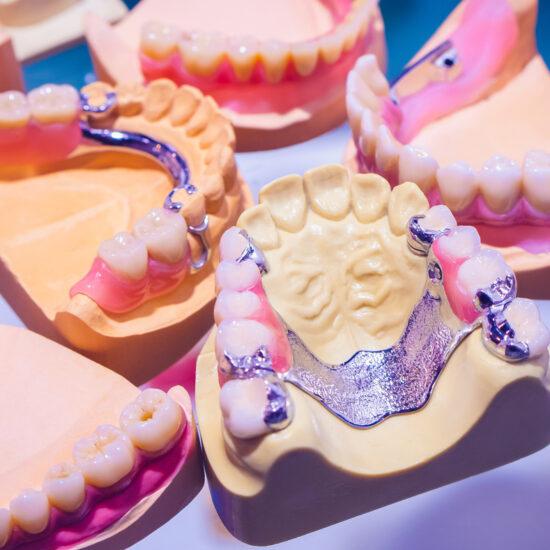The sandwich denture. Removable denture. Orthopedic dental designs. Clasp dentures. Dentistry. Prosthetic dentistry.