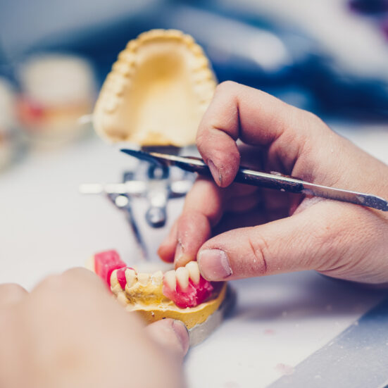 Dental prosthesis, prosthetics work. Close up of prosthetist hands while working on the denture. Selective focus.