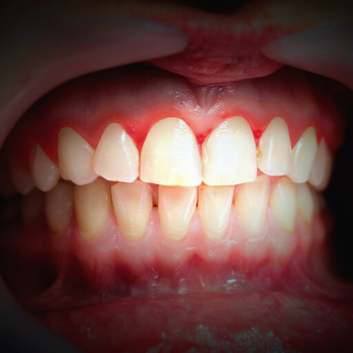 Mouth with bleeding gums on a dark background. Close up.